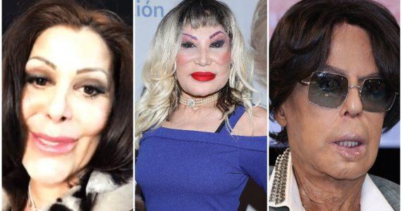 En busca de la belleza, estos famosos arruinaron su rostro con cirugías