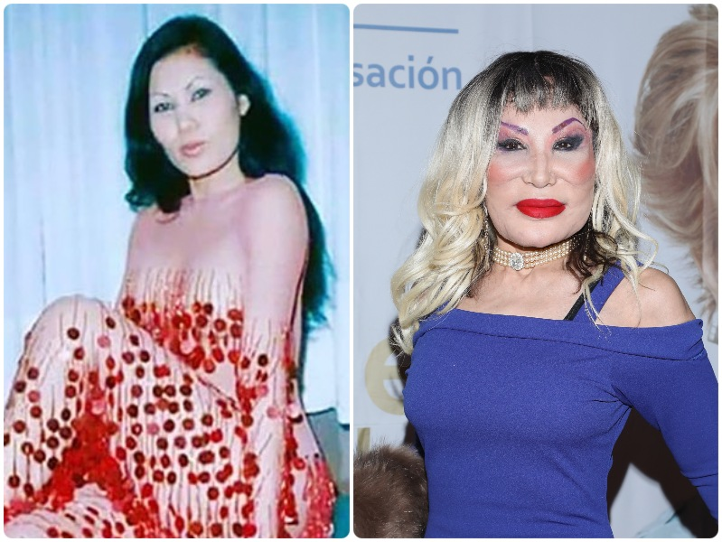 Cirugías plásticas fallidas: antes y después de estos famosos