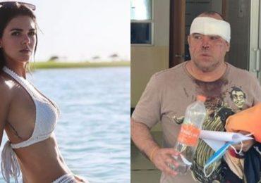 Fotógrafo agredido por Livia Brito aún no supera la golpiza que recibió. Foto: Archivo