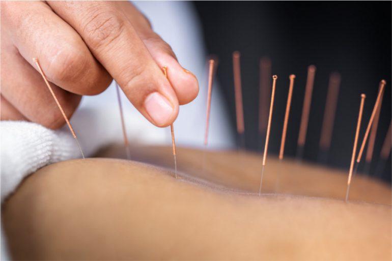 Qué es la acupuntura, para qué es y sus beneficios